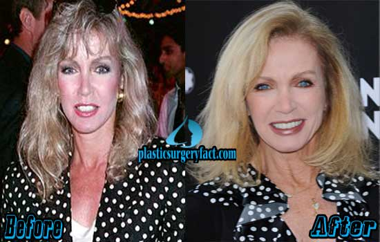 Donna Mills Before and After Photos