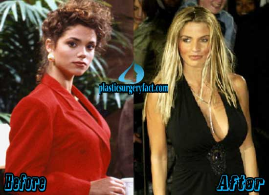 Elizabeth Berkley Breast Implants Before and After