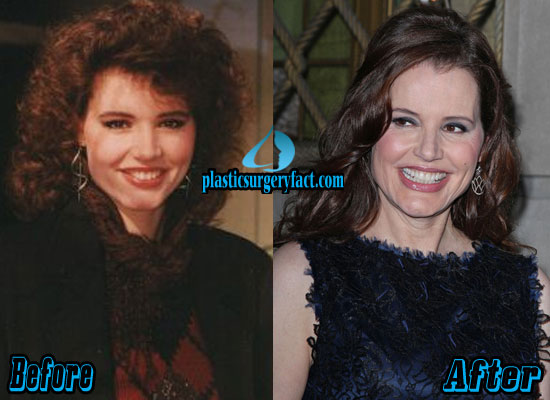 Geena Davis Before and After Photos