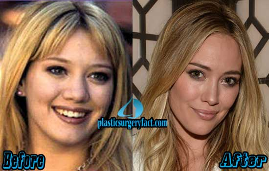 Hilary Duff Plastic Surgery Before and After Photos ...