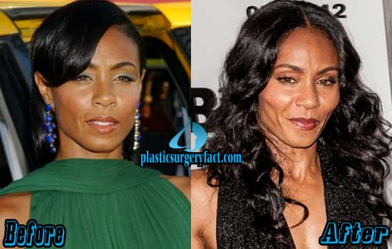 Jada Pinkett Smith Before and After Photos