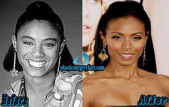 Jada Pinkett Smith Plastic Surgery Before and After Photos ...