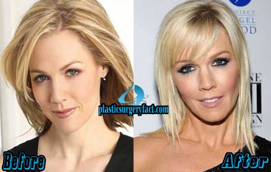 Jennie Garth Before and After Photos
