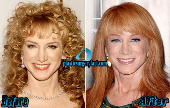 Kathy Griffin Plastic Surgery Before After