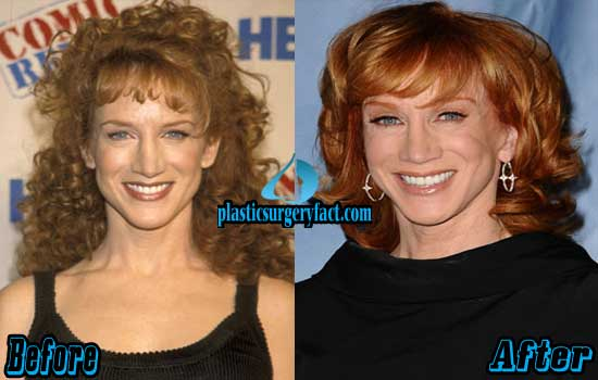 Kathy Griffin Plastic Surgery Before and After