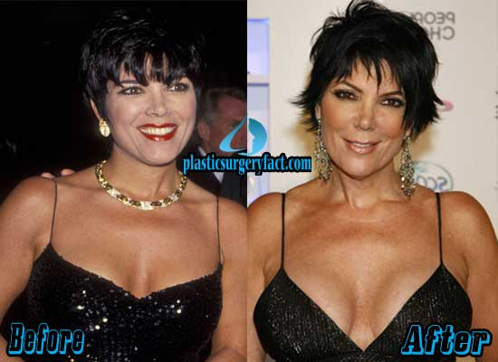 Kris Jenner Breast Implants Before and After
