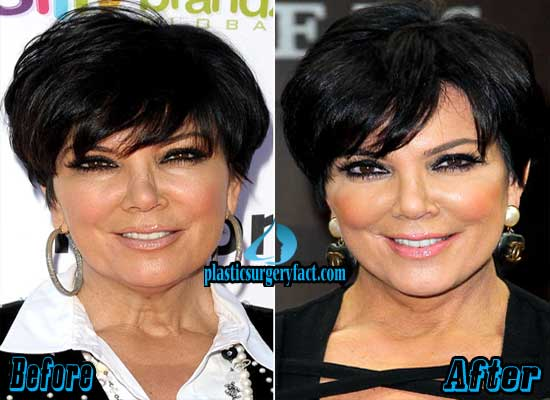 Kris Jenner Plastic Surgery Before and After