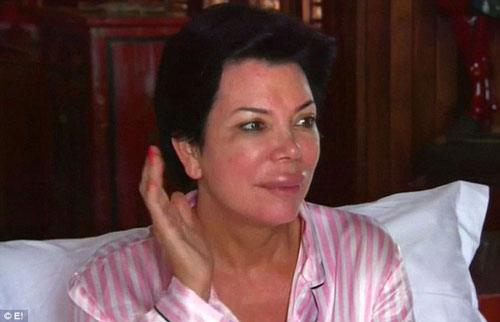 Kris Jenner Plastic Surgery Photos