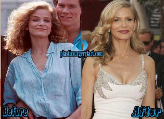 Kyra Sedgwick Breast Implants Before and After