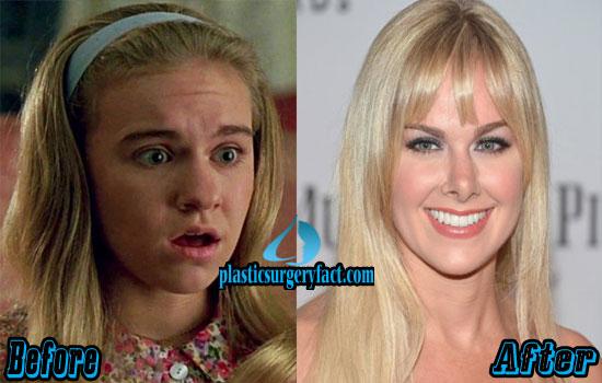 Laura Bell Bundy Plastic Surgery Before and After