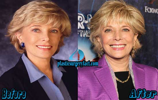 Leslie Stahl Before and After Photos