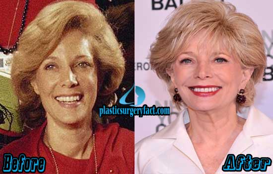 Leslie Stahl Plastic Surgery Before and After