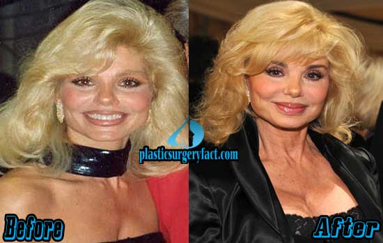 Anderson reduction loni before breast Loni Anderson