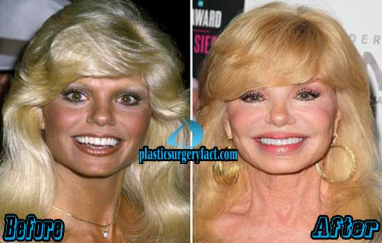 Anderson breast reduction before loni Loni Anderson