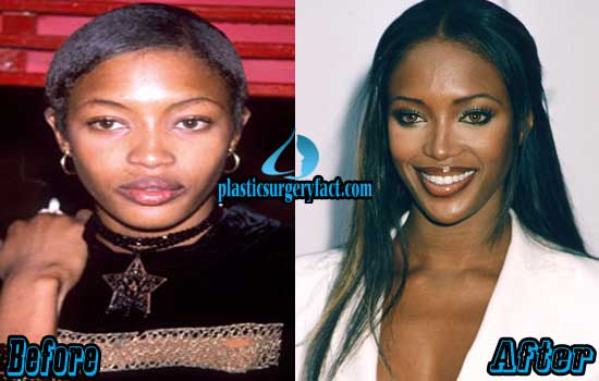 Naomi Campbell Plastic Surgery Before and After