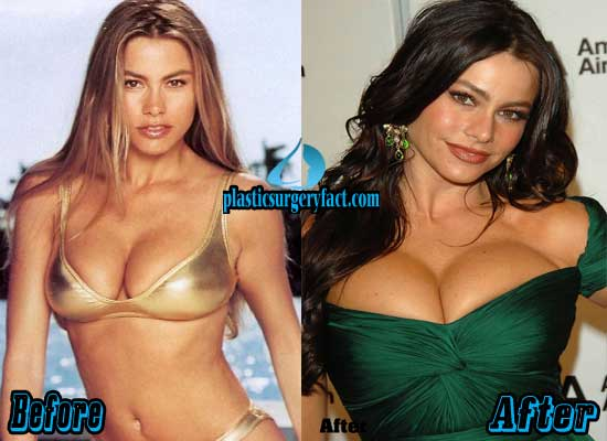 Sofia Vergara Breast Implants Before and After