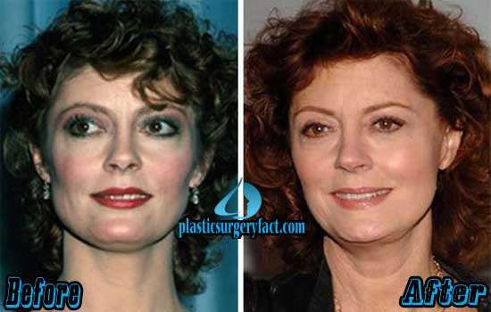 Susan Sarandon Before and After Photos