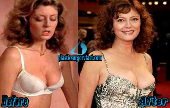 Susan Sarandon Breast Implants Before and After