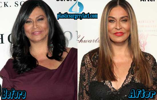 Tina Knowles Before and After Photos