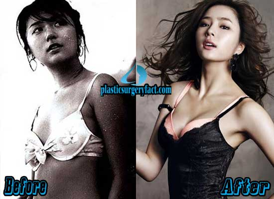 Yoon Eun Hye Breast Implants Before and After