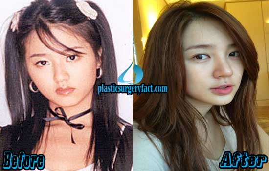 Yoon Eun Hye Plastic Surgery Before and After