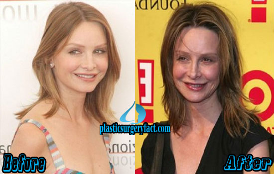 Calista Flockhart Before and After Photos