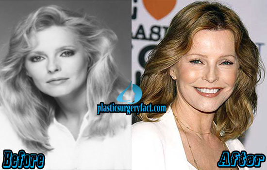 Cheryl Ladd Before and After Photos