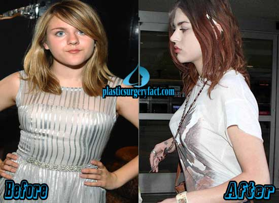 Frances Bean Cobain Breast Implants Before and After