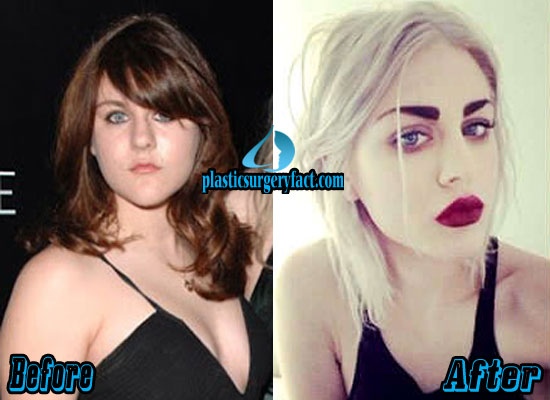 Frances Bean Cobain Plastic Surgery Before and After