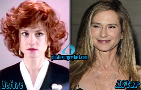 Holly Hunter Before and After Plastic Surgery