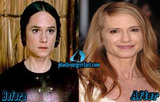 Holly Hunter Plastic Surgery Before and After