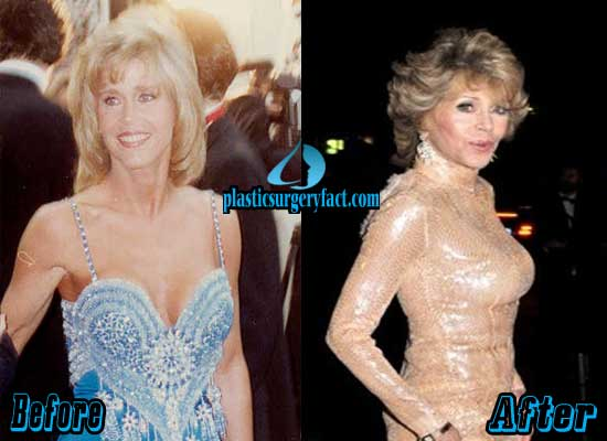 Jane Fonda Breast Implants Before and After