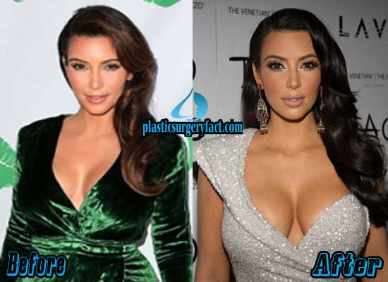 Kim Kardashian Breast Implants Before and After