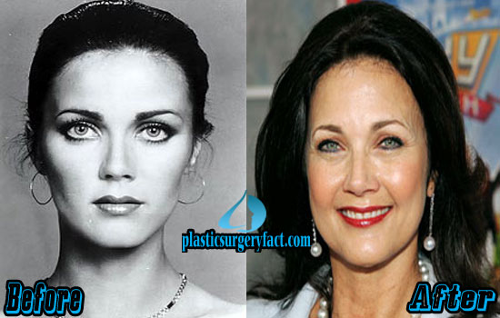 Lynda Carter Before and After Photos