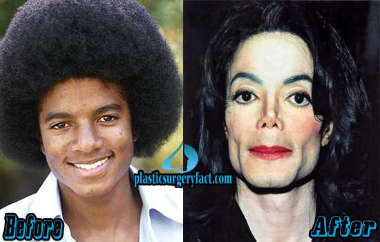 Michael Jackson Nose Job Before and After