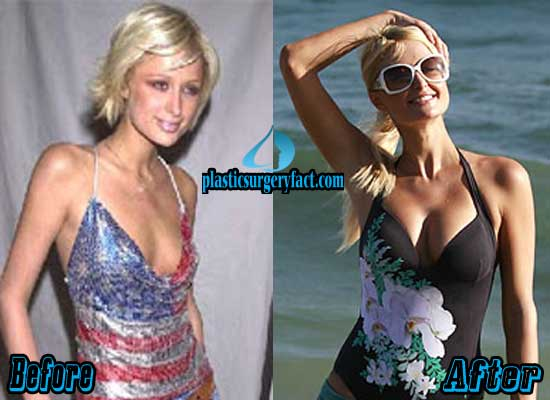 Paris Hilton Wants You To Stare At