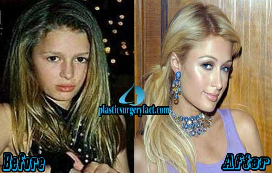 Paris Hilton Plastic Surgery Before and After