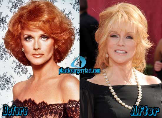 Ann Margret Before and After Plastic Surgery