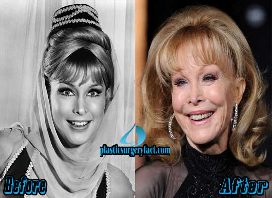 Barbara Eden Before and After Plastic Surgery
