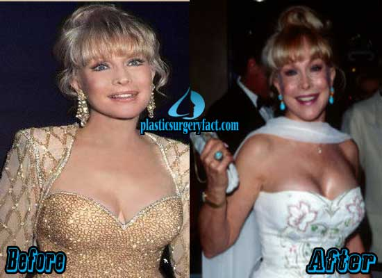 Barbara Eden Breast Implants Before and After