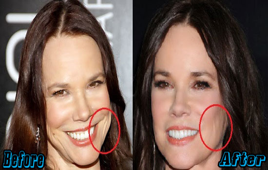 Barbara Hershey Plastic Surgery Face