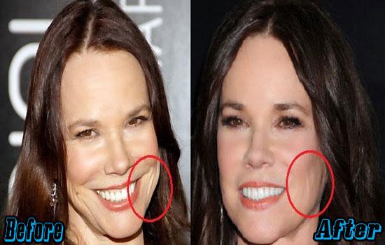 Barbara Hershey Plastic Surgery Face