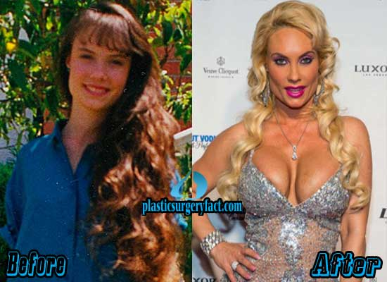 Coco Austin Breast Implants Before and After