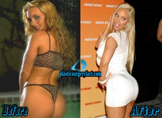 Coco Austin But Implants Before and After Pictures