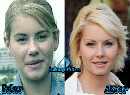 Elisha Cuthbert Plastic Surgery Before and After