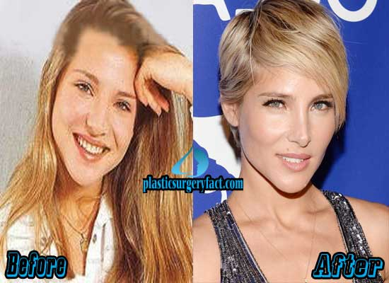 Elsa Pataky Nose Job Before and After