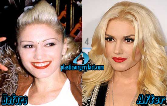 Gwen Stefani Nose Job Before and After