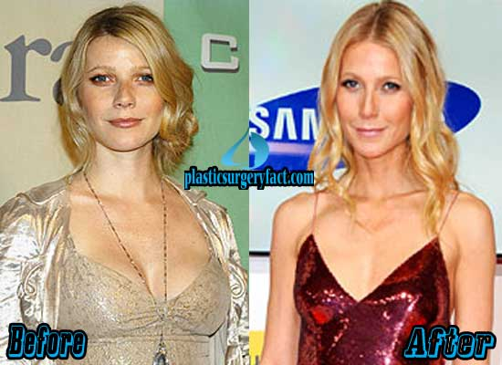Gwyneth Paltrow Boob Job Before and After