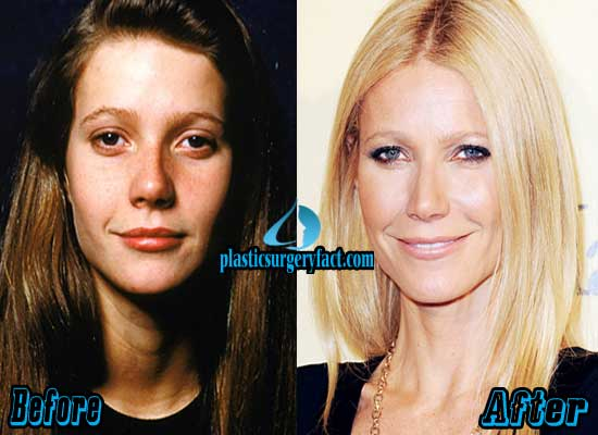 Gwyneth Paltrow Nose Job Before and After