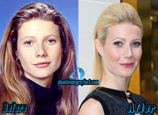 Gwyneth Paltrow Plastic Surgery Before and After